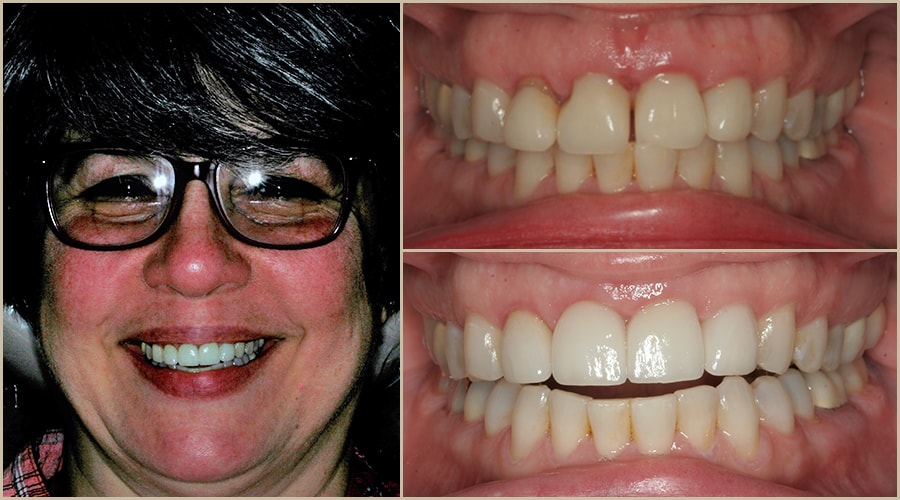 Alice showing us her teeth before and after her Grass Valley dentistry experience