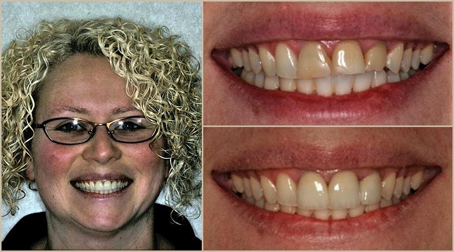 Alisa enjoyed breathtaking Grass Valley dentistry with Dr. Brott