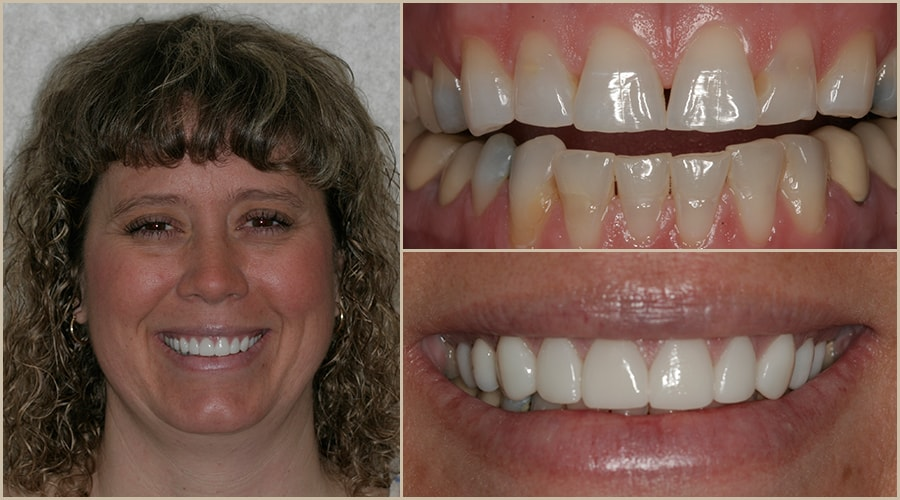 Diana received Grass Valley dentistry for her smile