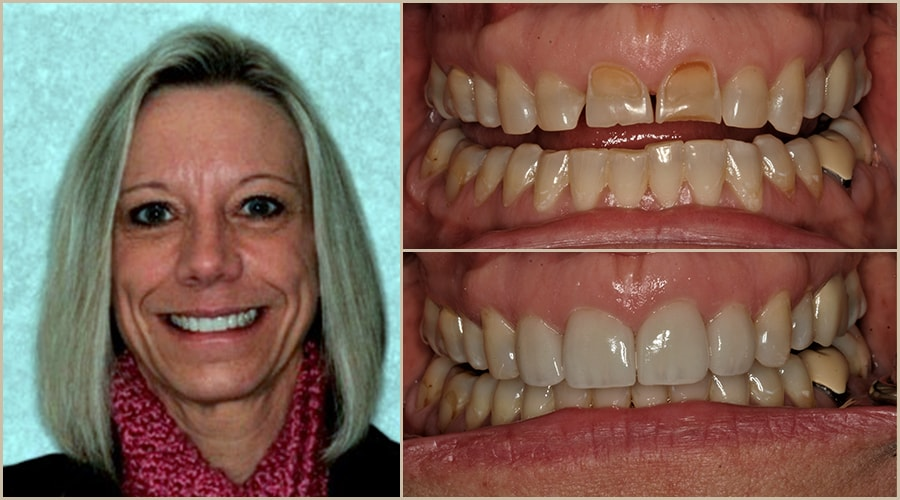 Grass Valley dentistry patient showing her before and after photos