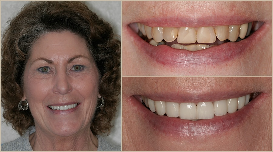 Sharon had top-quality Grass Valley dentistry performed by Dr. Brott