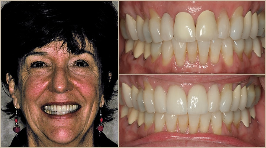 Sherri showing her Grass Valley dentistry before and after smiles